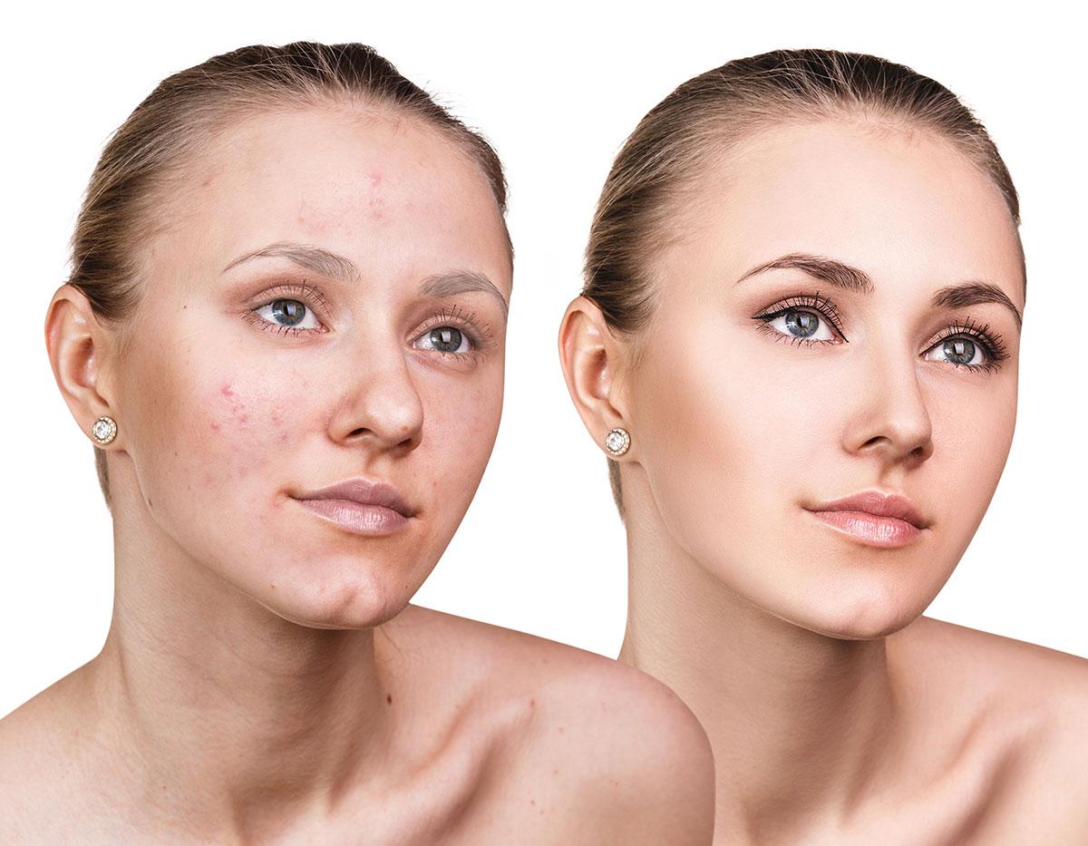 Injection PRP acnés, guérison acnés, Plasma Riche en Plaquettes